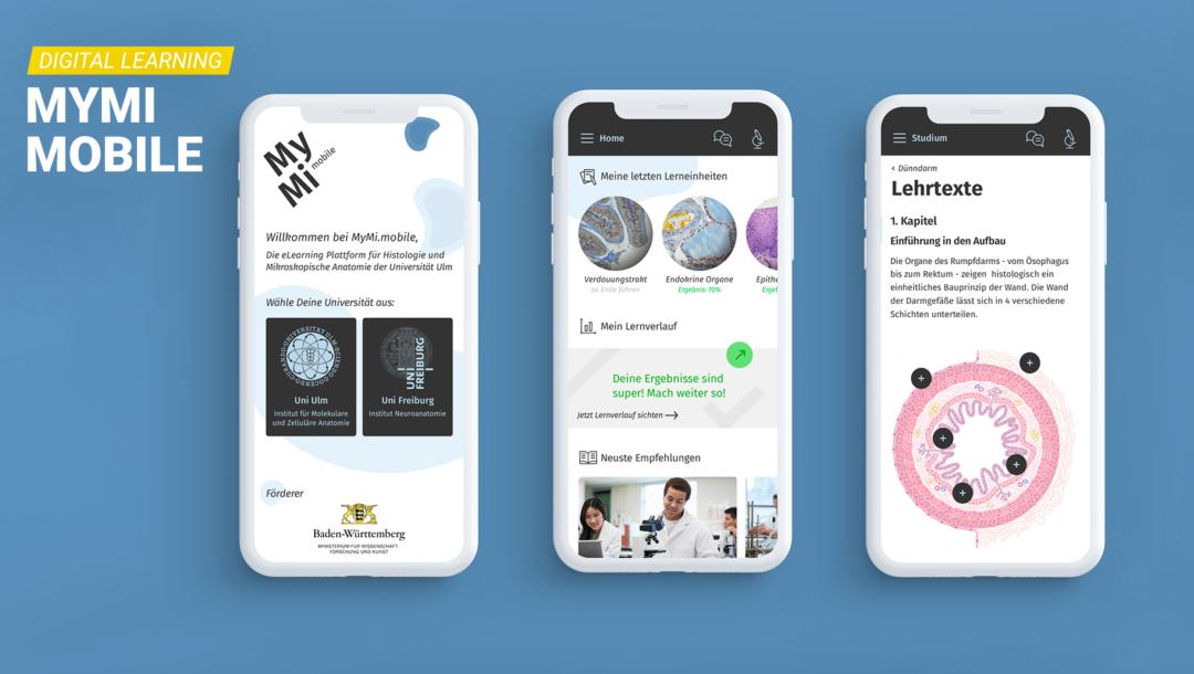 MyMI ist eine Digital-Learning-App zum Mikroskopieren für Studierende.
